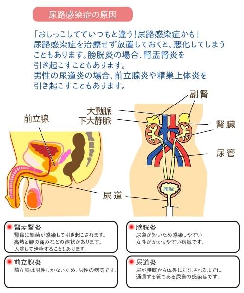 ストレス 原因 腎盂 腎炎